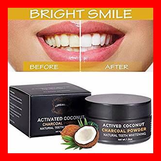 Los mejores kits blanqueadores dentales